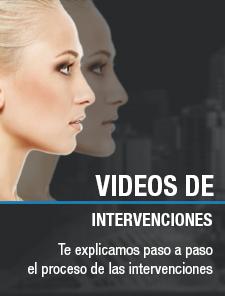 Vídeos de las intervenciones de cirugía estética cirujano plástico González-Fontana