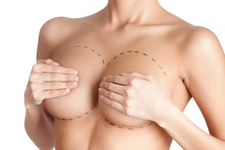 Breast surgery in Valencia and Castellón Gonzalez-Fontana