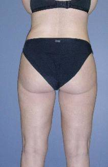 Liposucción - Clínica Dr. Gonzalez-Fontana