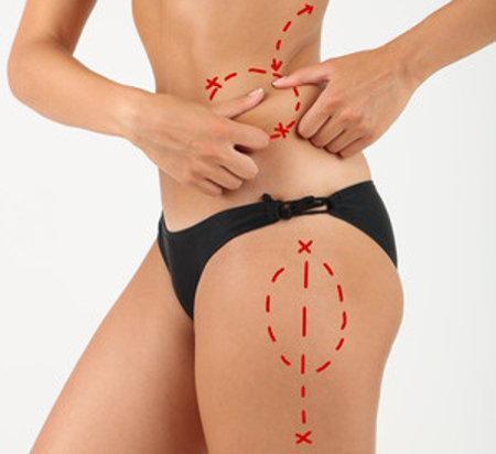 Lipoescultura o liposuccion en Valencia González-Fontana
