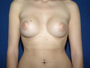 Cirugía de senos tuberosos Valencia