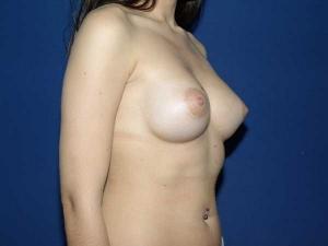Resultados de una cirugía de pechos tubulares en Valencia Dr. González-Fontana