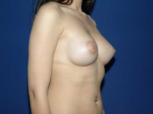 Cirugía de pechos tuberosos - Clínica Gonzalez-Fontana