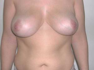 Reducción de senos Valencia