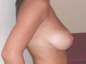 Cirugía de reducción de senos Valencia