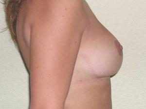 Después de una cirugía de reducción de mama en Valencia