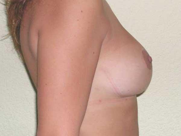 Reducción de pecho Dr. Gonzalez-Fontana