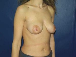 Elevación de Pechos o Mastopexia. Dr. Gonzalez-Fontana