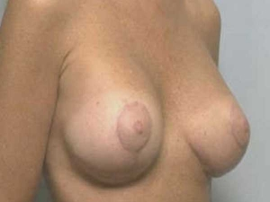 Resultado de una cirugía de levantamiento de pecho con el Dr. González-Fontana
