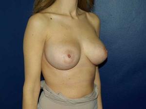 Elevación de mamas Dr. Gonzalez-Fontana
