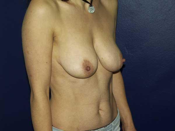 Elevación de Pechos-senos o mamas. Mastopexia. Dr. Gonzalez-Fontana
