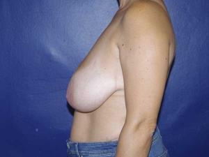 Cirugía de pechos caídos Dr. González-Fontana
