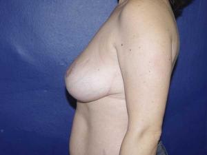 Reducción de mamas en Valencia González-Fontana