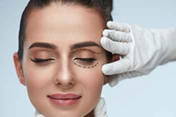 mujer con el ojo marcado para una cirugía de párpados.
