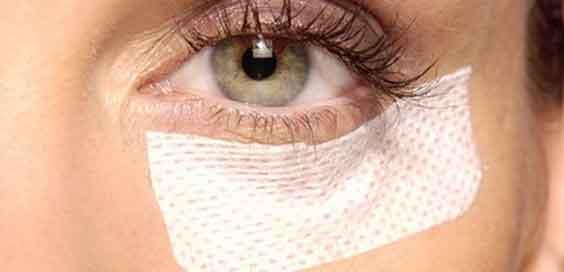 ojo con un apósito para el postoperatorio de una cirugía de párpados caídos.