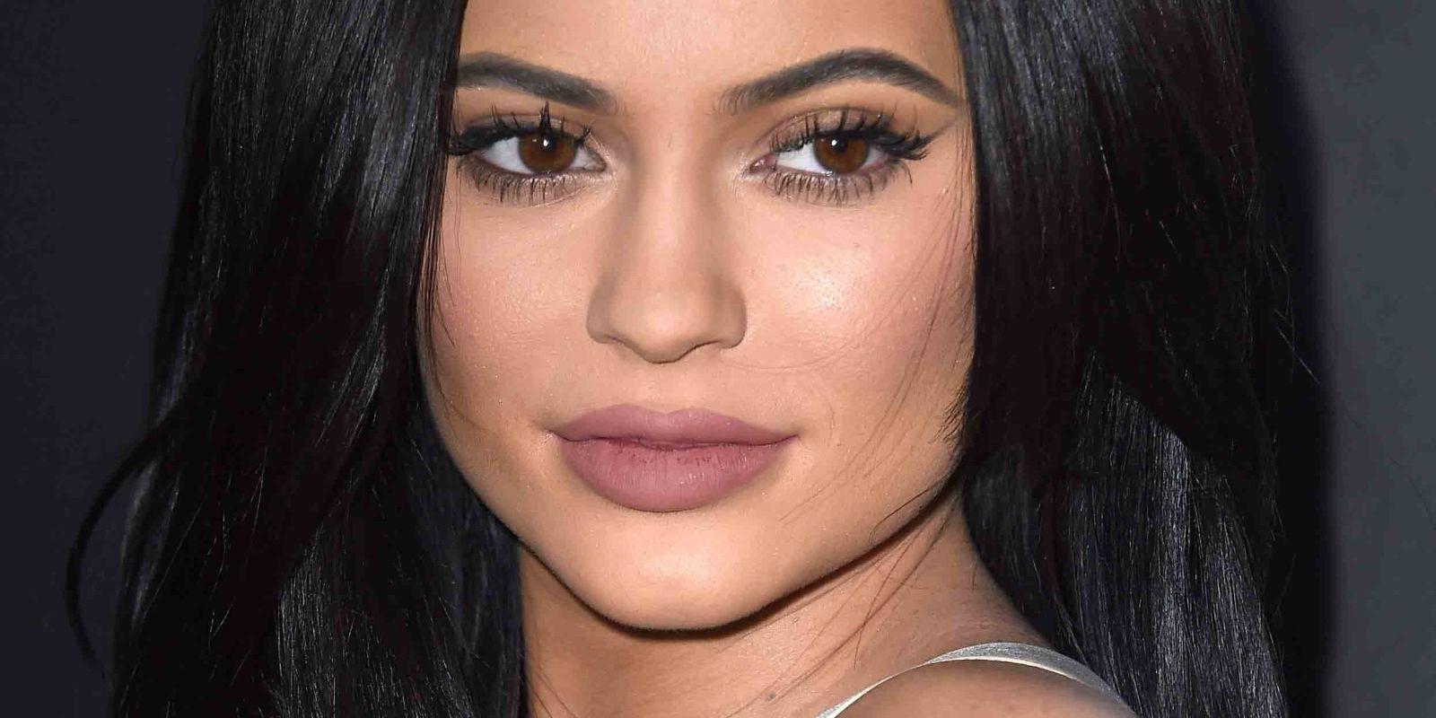 Lip lift: famosas como kylie Jenner aumentan sus labios