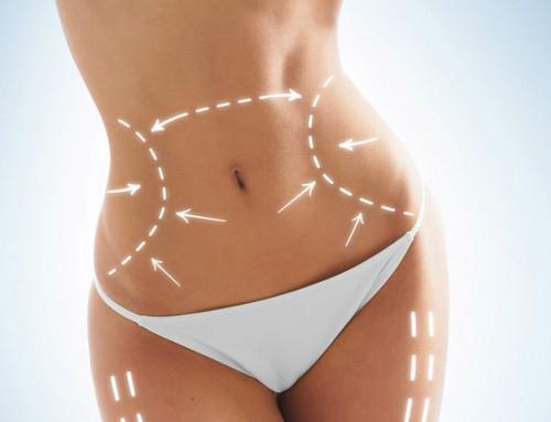 Abdominoplastia: Luce un abdomen perfecto