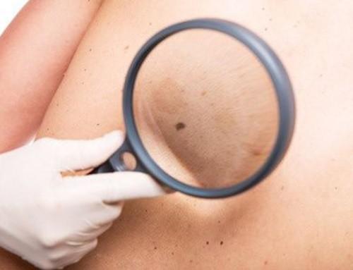 La cirugía cutánea: lesiones en la piel y corrección de cicatrices