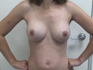 Doctor González-Fontana, especialista en aumento mamario