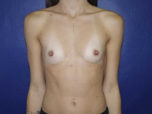 Cirugía de aumento de mamas Valencia