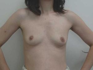 Aumento mamario Clínica González-Fontana
