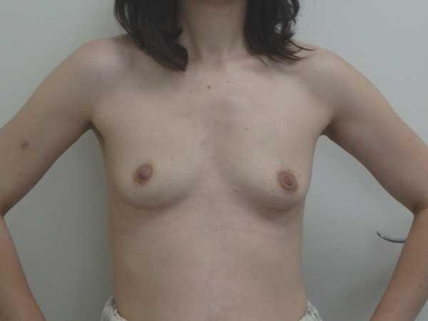 Aumento de pecho Dr. Gonzalez-Fontana