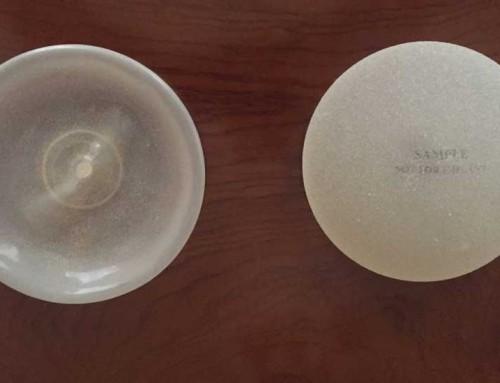 Implantes mamarios; ¿Qué opción es la más adecuada?