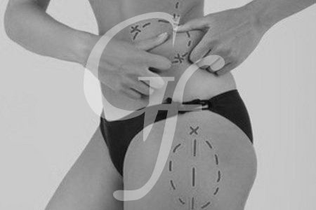 cirugia estética corporal en Valencia y Castellón González-Fontana