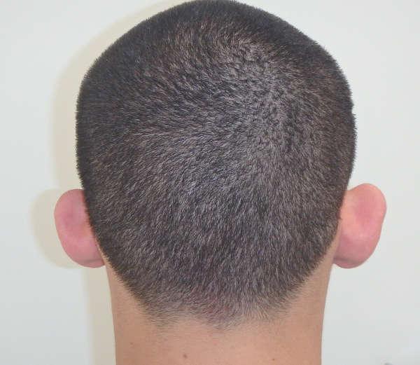 operacion de orejas soplillo en valencia gonzalez-fontana: caso2 antes