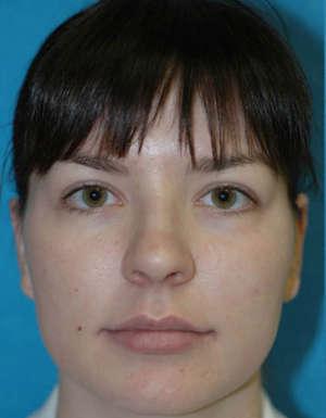 antes de la cirugia de nariz caso3
