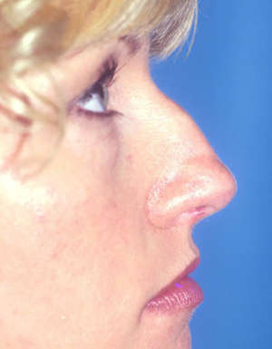 antes de la operacion de nariz antes caso2