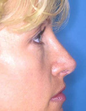despues de la operacion de nariz caso2