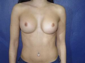 Foto del resultado de la mamoplastia caso2
