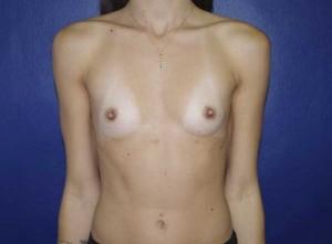 """""""Foto antes de la Cirugía caso3"""