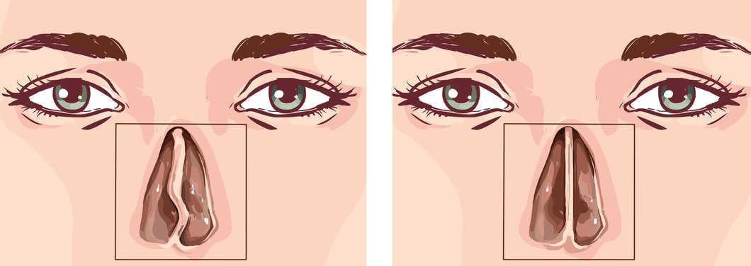 dibujo de una tabique nasal desviado y un tabique recto después de una septoplastia.