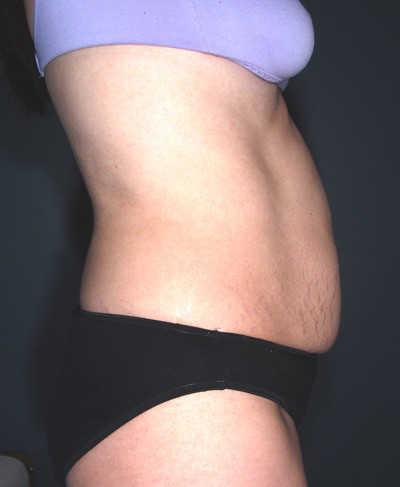 Antes de la abdominoplastia despues del embarazo